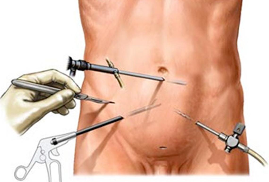 operación de tumor de próstata de convalecencia